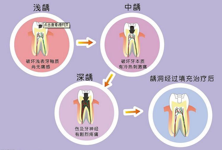龋齿不经治疗,是不会自行愈合的,加之有龋齿的牙齿松动,其发展的最终